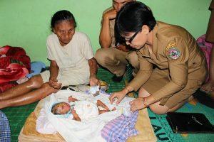 Ada Bayi Lahir di Tobasa dengan Wajah Aneh dan Kulit Terkelupas