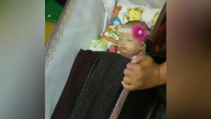 Bayi Debora Simanjorang Meninggal di Rumah Sakit, Uang Muka Jadi Kendala