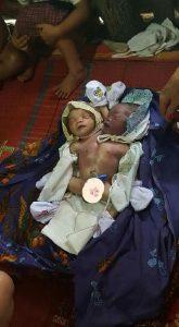 Bayi Laki-laki Berkepala Dua Ini Meninggal Dunia